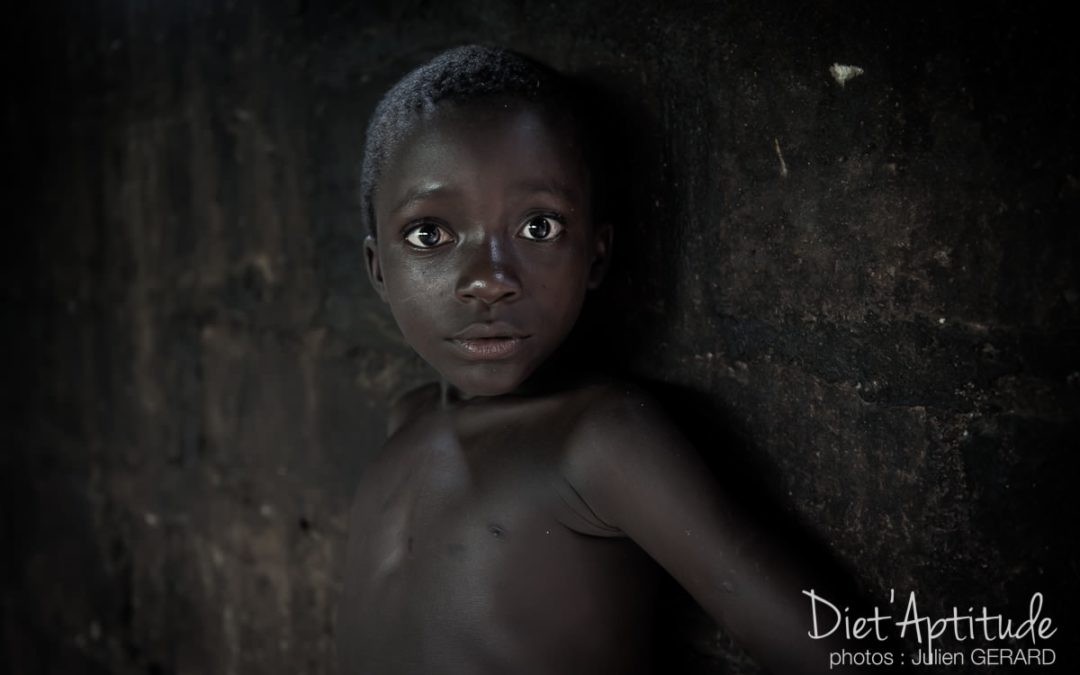 La malnutrition en Afrique de l'Ouest : Bénin